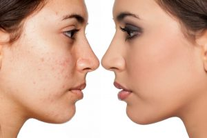 How to Deal With Skin Problems